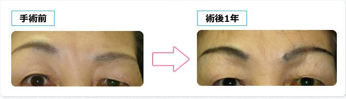 眼瞼皮膚弛緩の手術前後