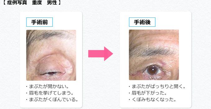 眼瞼下垂症の手術前後